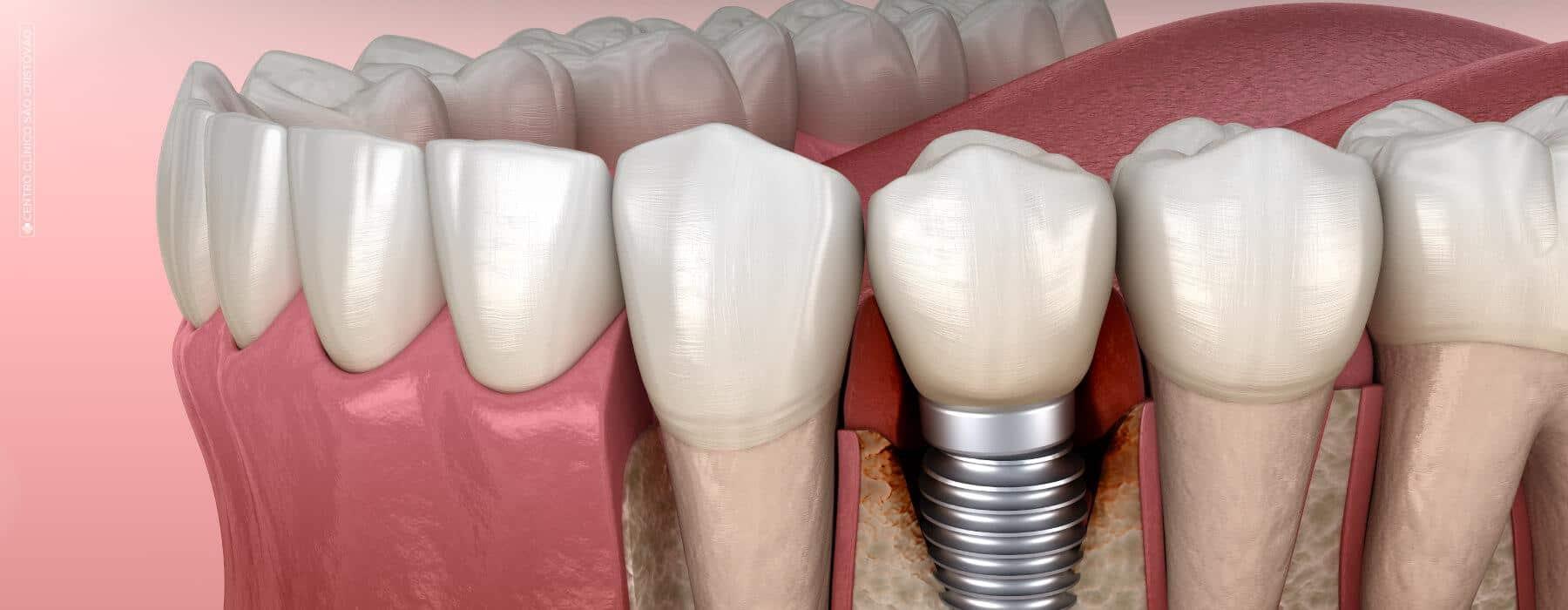 Quais as fases de um tratamento de implantes dentários?